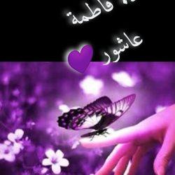 استئصال ورم يزن 550جم من رحم سيده في مستشفى بقيق